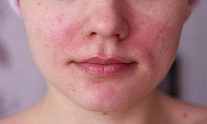 Может ли быть аллергия на кокосовое масло?